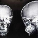 Rayos X de accidentes increíbles.