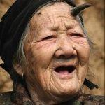 Anciana de 100 años tiene cuerno en la frente