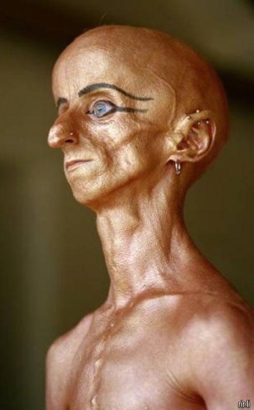 Leon Botha progeria (5)