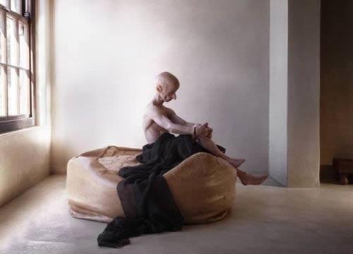 Leon Botha progeria (11)