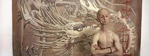 Leon Botha progeria (10)