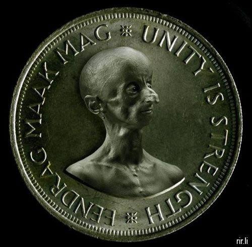 Leon Botha progeria (9)