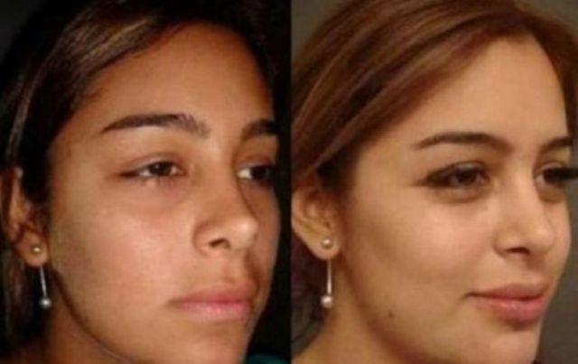 Cirugías plásticas Larissa Riquelme. (2)
