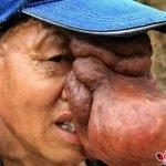 Hombre con un tumor en la mitad del rostro