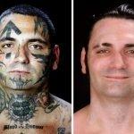 Eliminación de tatuajes Nazi