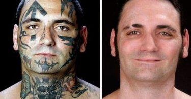 Eliminación de tatuaje (5)