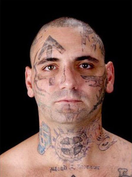 Eliminación de tatuaje (1)