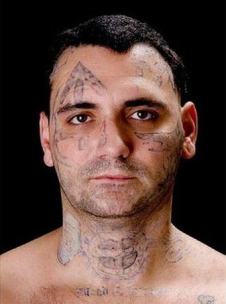 Eliminación de tatuaje (9)