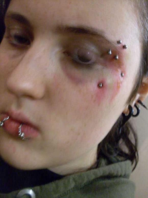 Infecciones de tatuajes y perforaciones (15)