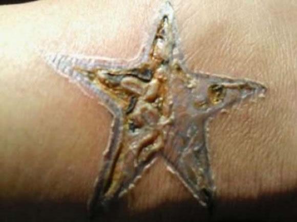 Infecciones de tatuajes y perforaciones (11)