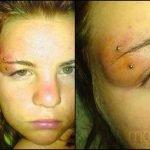 Infecciones de tatuajes y perforaciones