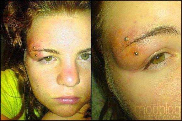Infecciones de tatuajes y perforaciones (8)