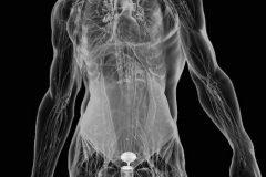 organos robot agua