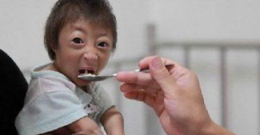 La niña más pequeña del mundo (3)