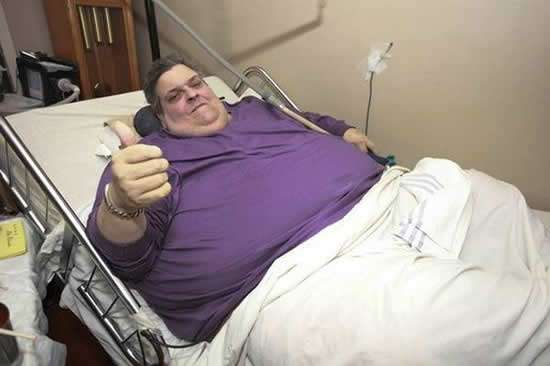 Michael Hebranko obesidad morbida