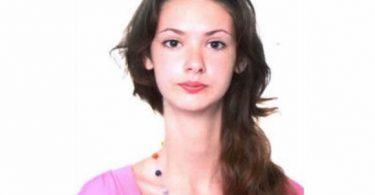Lyudmila Titchenkova síndrome Marfan (7)