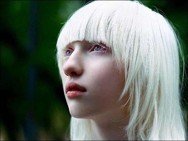 Nastya Zhidkova albina (7)