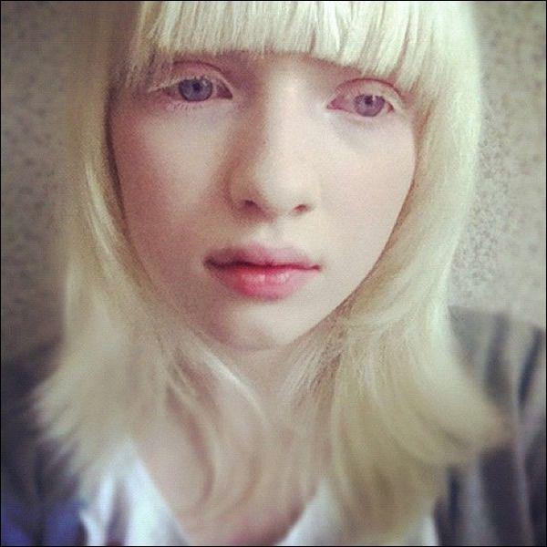 Nastya Zhidkova albina (6)