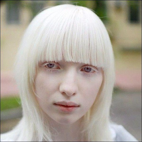 Chicas Albinas Muy Lindas
