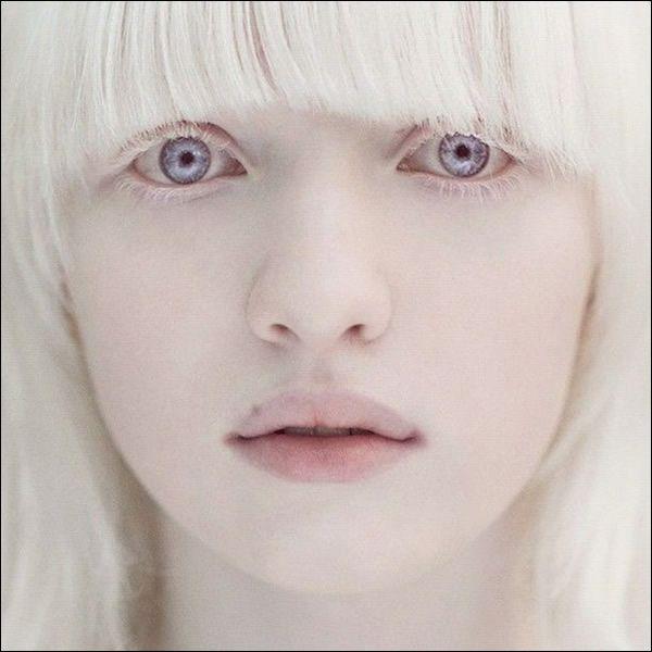 Nastya Zhidkova albina (4)
