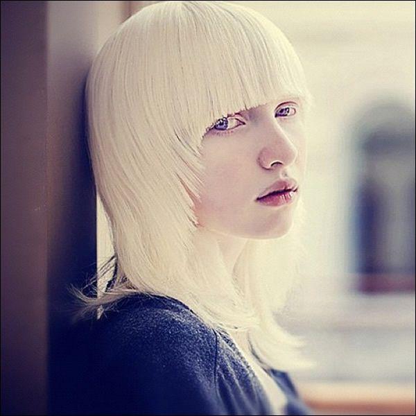 Nastya Zhidkova albina (3)