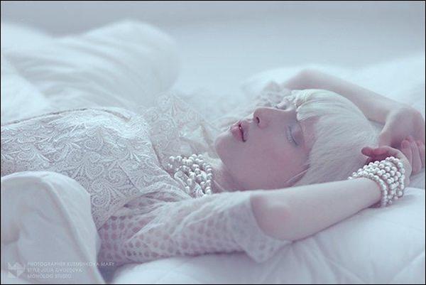 Nastya Zhidkova albina (2)