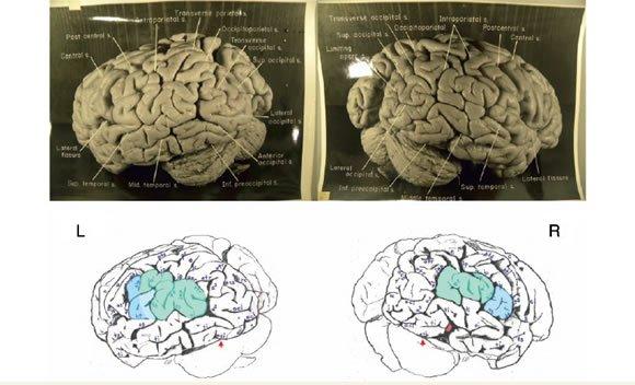 cerebro Einstein