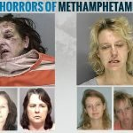 Antes y después de la droga: Metanfetamina