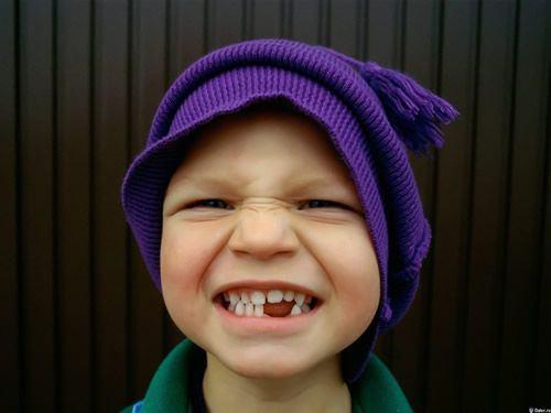 dientes caidos denticion