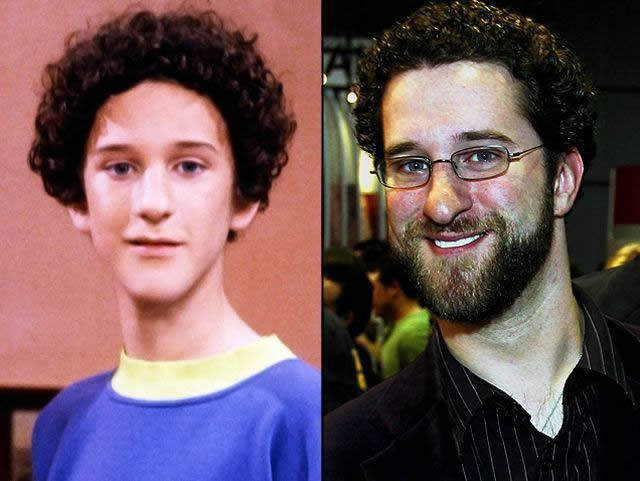 Dustin Diamond antes despues Famosos infancia()