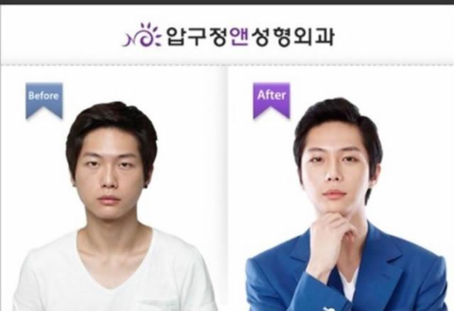 Cirugía plástica en Corea (1)