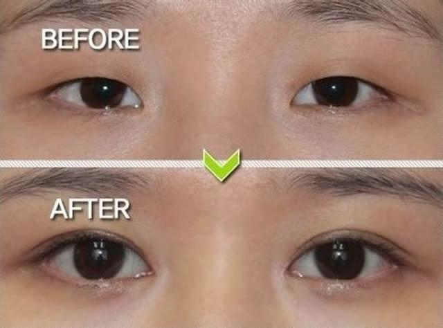 Cirugía plástica en Corea (10)
