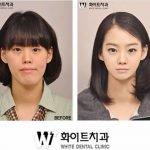 Cirugía plástica en Corea: antes y después