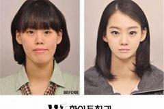 Cirugía plástica en Corea (9)