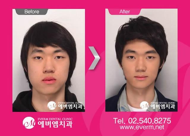 Cirugía plástica en Corea (8)