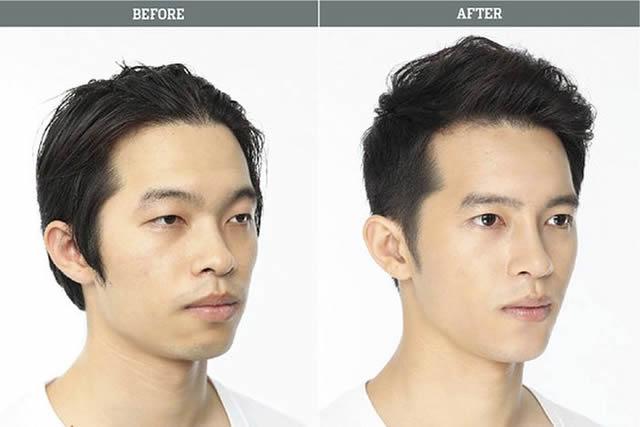 Cirugía plástica en Corea (7)