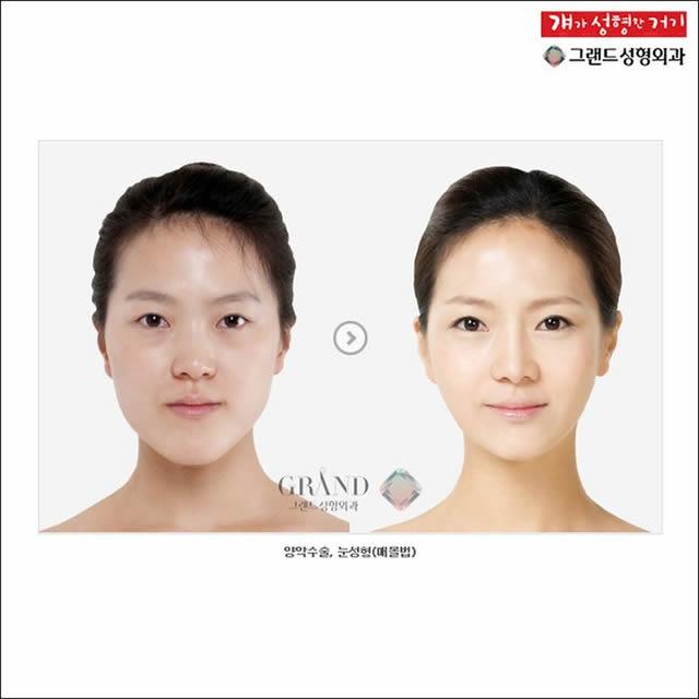Cirugía plástica en Corea (4)