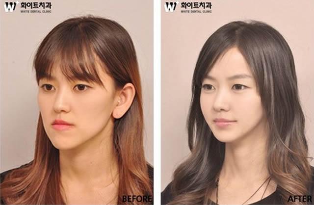 Cirugía plástica en Corea (16)