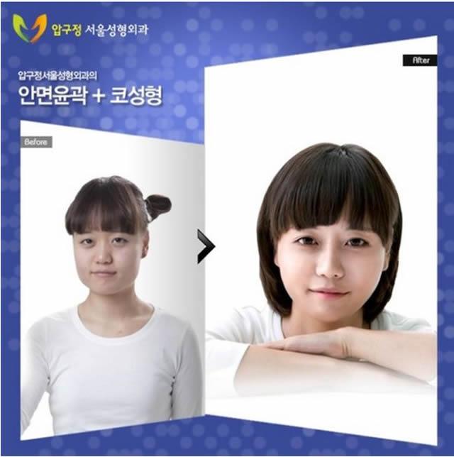 Cirugía plástica en Corea (15)