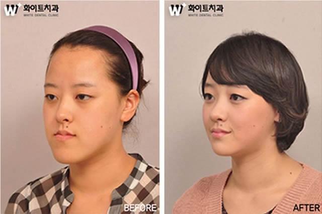 Cirugía plástica en Corea (14)