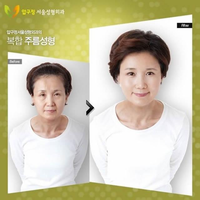 Cirugía plástica en Corea (12)