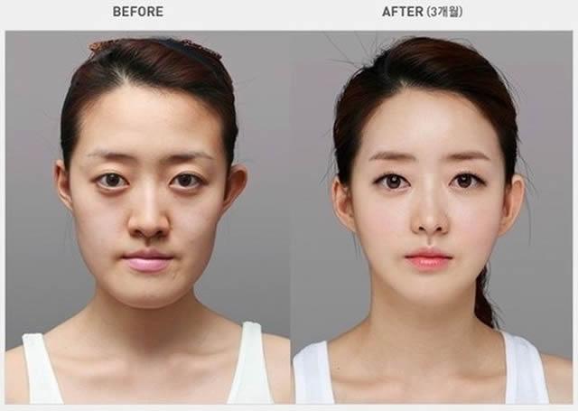 Cirugía plástica en Corea (11)