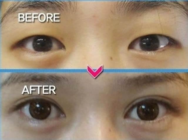 Cirugía plástica en Corea (22)