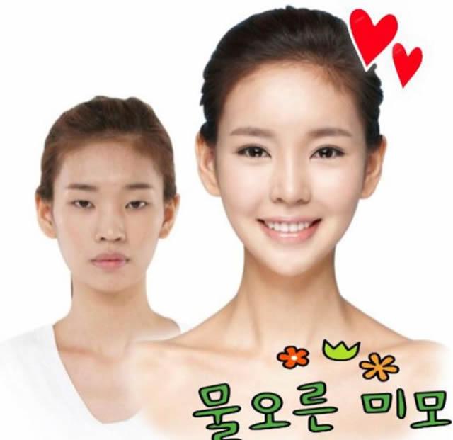 Cirugía plástica en Corea (21)