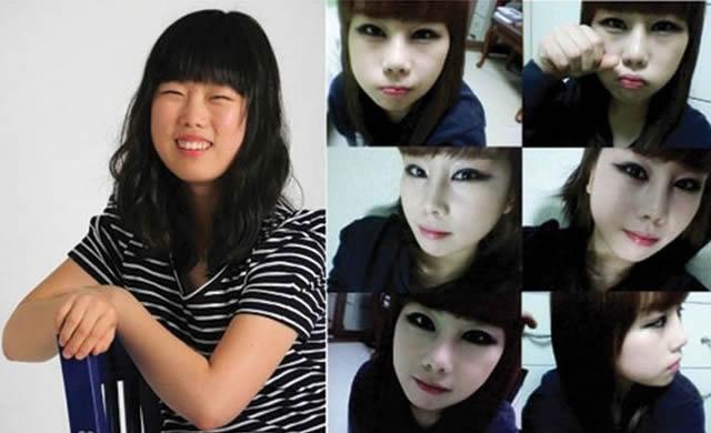 Cirugía plástica en Corea (19)