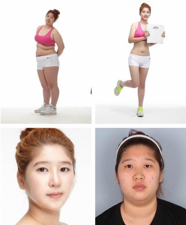 Cirugía plástica en Corea (28)