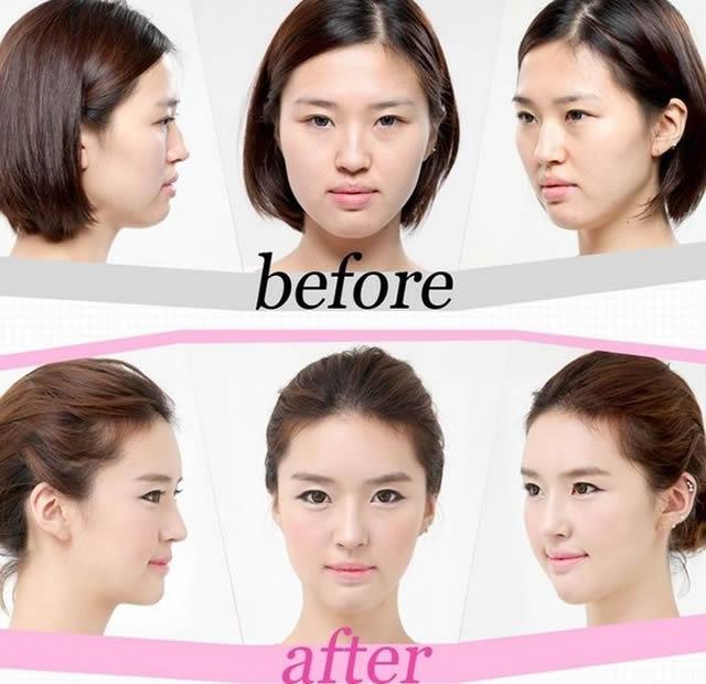 Cirugía plástica en Corea (27)