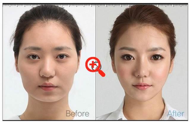 Cirugía plástica en Corea (26)