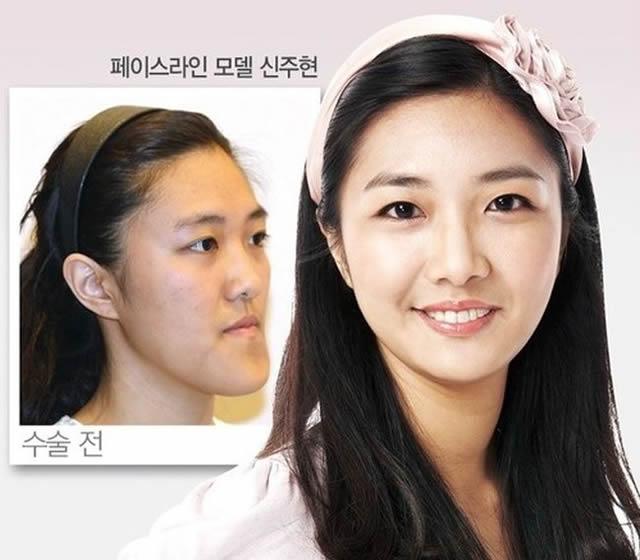 Cirugía plástica en Corea (25)