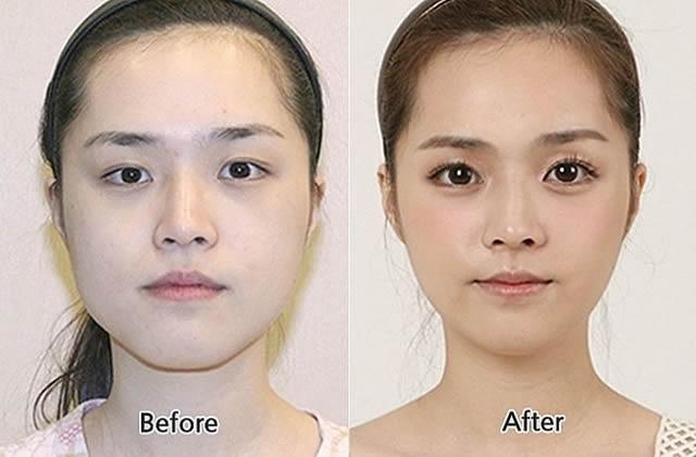 Cirugía plástica en Corea (24)